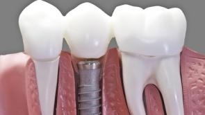 Implantaten Delft