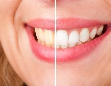 Tanden bleken Delft